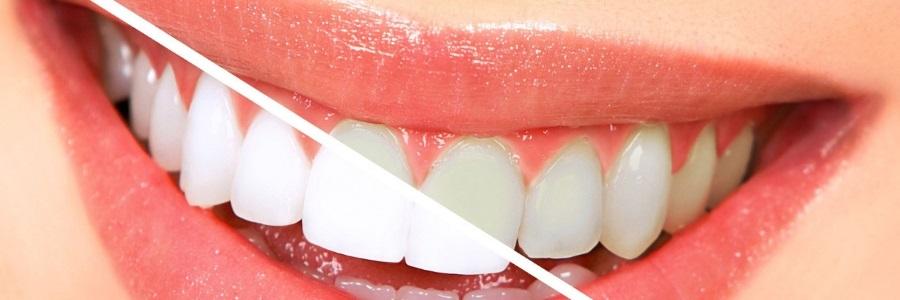 Best Teeth Whitening Toothpaste